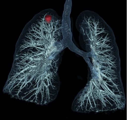 Программа визуализации легких для системы рентгеновской Scenaria 128 - поставка КТ в Казахстане, Хитачи, Hitachi